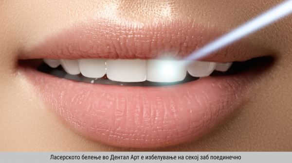 Why laser teeth whitening at Dental Art?