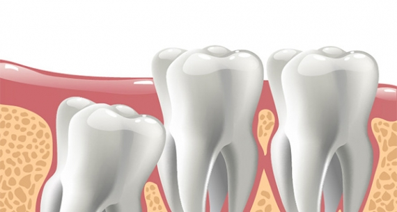 What you need to know about wisdom teeth?