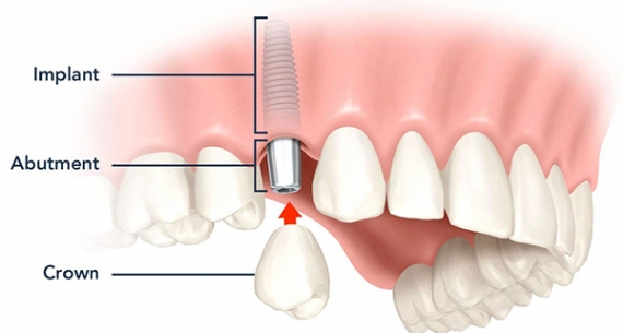 Proper care improves longevity of dental implants